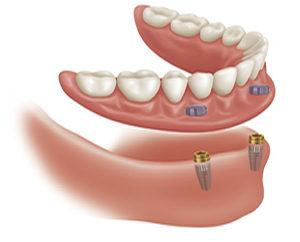 Implante Sobredentadura