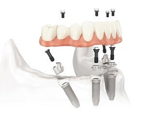 Implante Prótesis hibrida